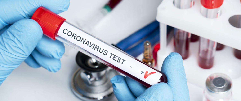 coronavirus,torre annunziata